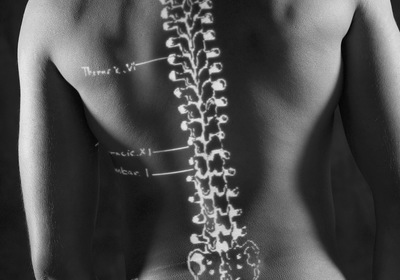 Have you been diagnosed with osteoporosis or osteopenia - You will want to see this!